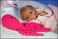 BNPS.co.uk (01202 558833)<br /> Pic: CorinMesser/BNPS<br /> <br /> Jasmine just after she was born with her crochet octopus.<br /> <br /> Twin baby girls who have beaten the odds to survive after being born three months premature have been reunited in time for Christmas.<br /> <br /> Little Jasmine and Amber Smith-Leach were born 12 weeks early, weighing just 2lb 2oz and 2lb 12oz respectively. <br /> <br /> Despite not being due until January 22, the babies have fought through setback after setback.<br /> <br /> Last night (sat) the pair shared a cot for the first time while mum Kat Smith slept next do them.