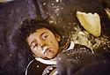 Turquie 1991.Les réfugiés kurdes sur la frontière: enfant brulé dans un dispensaire.Turkey 19991.Kurdish refugees on the border: a burnt child in an health center
