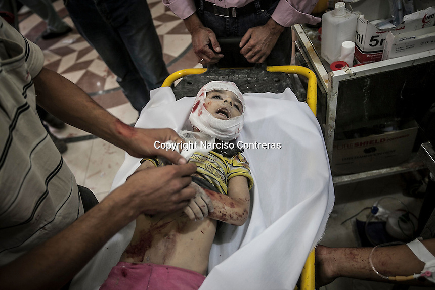 A dead body of one Syrian child lies down on a trolley as it spasms at one hospital in Tarik Al-Bab after was arrived badly injured by mortar shelling in Aleppo City.