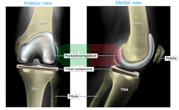 Total Knee Joint Replacement Surgery. This full color medical exhibit shows a colorized x-ray of an anterior (front) and lateral (side) view of a post-operative view of a total knee replacement. The prosthetic devices are rendered in color.