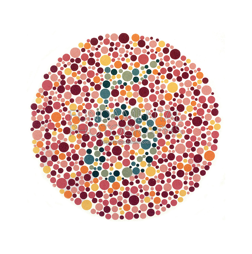 PSEUDOISOCHROMATIC COLOR BLINDNESS TEST<br /> Plate #10 of Dr. Ishihara's Test- Green Deficiency<br /> Normal colour vision should read the number 5.  Those with colour vision deficiencies will not read the number or read it incorrectly.