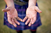 Neil Elliott shows his hands after tossing a caber near his home in Dumbarton. Neil competes in over 40 Highland Games and heavyweight events across the world throughout the summer.