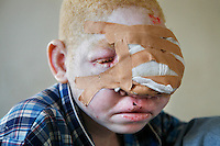 A young albino child is treated for skin cancer, the biggest killer of albinos in Africa, at Dar Es Salaam's Cancer Institute. Discrimination against albinos is a serious problem throughout sub-Saharan Africa, but recently in Tanzania albinos have been killed and mutilated, victims of a growing criminal trade in albino body parts fuelled by superstition and greed. Limbs, skin, hair, genitals and blood are believed by witch doctors to bring good luck, and are sold to clients for large sums of money, carrying with them the promise of instant wealth.