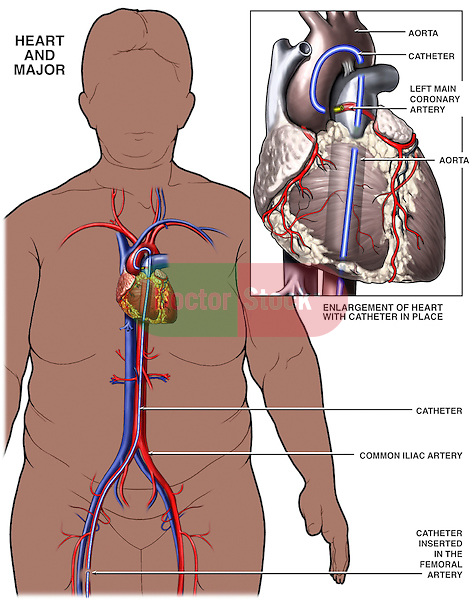 Icd Code Abdominal Angiogram | Autos Post of Icd 10 pcs code for left heart catheterization
