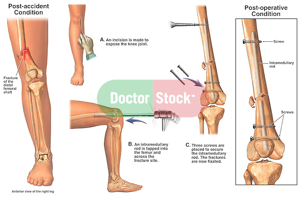 Distal Femur Fractures with Retrograde Surgical Fixation with ...: http://doctorstock.photoshelter.com/image/I0000vIg9i_luZvk