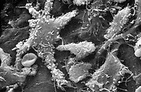 On the surface of the multipolar neurons are the remains of numerous synaptic boutons. SEM X1740 **On Page Credit Required**
