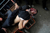 SULAIMANIYAH, IRAQ: A protester who was shot in the face is wheeled down the street...Tension continues to grow in the semi-autonomous region of Iraqi Kurdistan as protesters clash with police on a 5th day of unrest...Photo by Akam Shekh Hadi