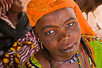 This Fulani woman in Torodi, Niger sports the traditional facial scarring, that is considered beautiful. The scarring is done with a razor blade, and charcoal powder mixed with cream is rubbed into the fresh wound to create the darkened effect.  She also has had her lower lip tatooed black.