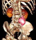CT scan of an abdominal aortic aneurysm which developed between the renal arteries and the common iliac arteries.