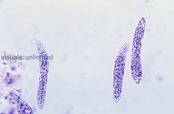 Euglena Protozoans showing flagella. LM X400.