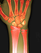 X-ray of the wrist of a human 12 year old.