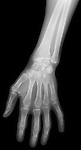 X-ray image of a hand (white on black) by Jim Wehtje, specialist in x-ray art and design images.