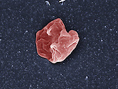 "Human red blood cell (erythrocyte) after 1 minute in a severely hypotonic solution (0% NaCl), less than the content of normal blood.  Water has moved into the cell and the cell has burst in a process called hemolysis, leaving only the remnants of the cell membrane. SEM X10,000 (based on 4"" x 5"")"