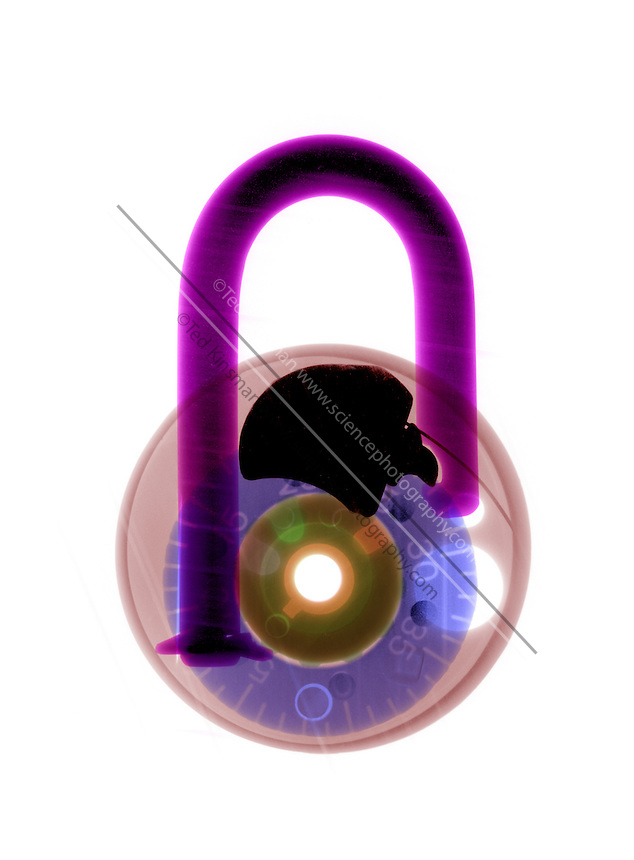 X-Ray of a Combination Lock.