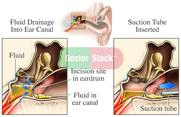This exhibit compares cut-away views of the middle ear showing the incision and suctioning of fluids during chronic ear infections. Labels identify the fluid, incision site ion the ear drum, fluid in the ear canal and suction tube.