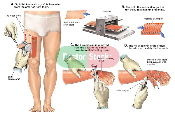 sciatic nerve damage from steroid injection