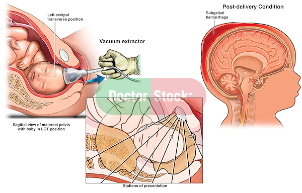 Birth Trauma - Vacuum Extractor Delivery with Head Injury ...