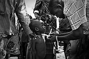 A Merlin nurse measures the arm of a young malnutritioned girl from the Turkana tribe in Nakapelewoi village in the Turkana region of northwestern Kenya. Photo: Sanjit Das/Panos