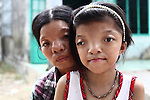 """Le Thi Thu, 42, and her daughter, Nguyen Thi Ly, 11, live in a  village south of Da Nang, Vietnam. They are second and third generation victims of dioxin exposure, the result of the U.S. military's use of Agent Orange and other herbicides during the Vietnam War more than 40 years ago. Thu's father was sprayed with Agent Orange when he was a soldier in the North Vietnamese Army. She was born in 1970 with facial deformities. """"I could see the difference between myself and others right away, she recalls. """"When I was a small child, I felt pain inside my body all the time. My parents took me to the hospital, and the doctors determined that I had been affected by Agent Orange."""" Ly, her first child, was born with the same facial deformities. Her 10-year-old son looks normal, but he also suffers from chronic bone pain, a cruel illustration of how dioxin exposure can randomly affect a family through several generations. The Vietnam Red Cross estimates that 3 million Vietnamese suffer from illnesses related to dioxin exposure, including at least 150,000 people born with severe birth defects since the end of the war. The U.S. government is paying to clean up dioxin-contaminated soil at the Da Nang airport, which served as a major U.S. base during the conflict. But the U.S. government still denies that dioxin is to blame for widespread health problems in Vietnam and has never provided any money specifically to help the country's Agent Orange victims. May 28, 2012."""