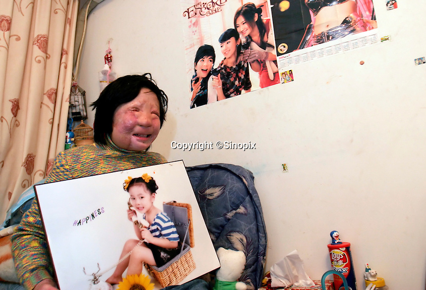 11 year old Liu Fangyuan (Yuan Yuan) sits while holding a picture of her taken in 2000 in the bedroom that she shares with her parents in Nanjing, China. In 2002, Yuan Yuan's aunt poured sulfuric acid on her face after losing a housing dispute with Yuan Yuan's father. The attack blinded and seriously disfigured Yuan Yuan, while her aunt is serving a life sentence in prison, Yuan Yuan and her family awaits a controversial face transplant...PHOTO BY SHEN / SINOPIX