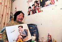 Face Transplant China