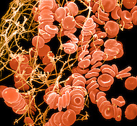 Blood clot formation showing trapped red blood cells or erythrocytes in fibrin. SEM X4000 **On Page Credit Required**