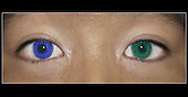 Color contact lenses or party contact lenses can cause infection if not cleaned properly.