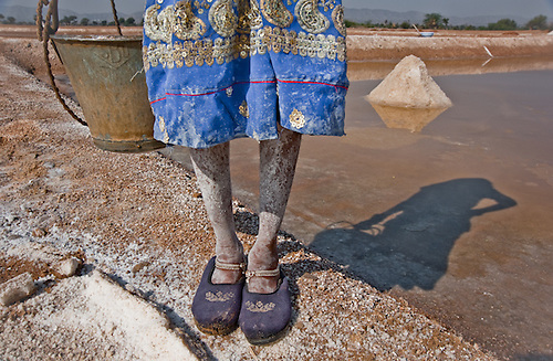 Salt covers the feet of a young girl, employed as a saltworker in India.