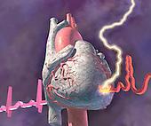 Heart attack, graphic representation of heart attack.