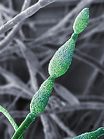 Conidia of the Fungus (Alternaria alternata). This ubiquitous fungus causes numerous diseases of plants and is a common indoor mold that is a leading cause of allergies and asthma. SEM X2000 based on 100 x 125 mm