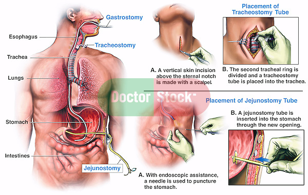 final placement of a tracheostomy, gastrostomy, and jejunostomy tube ...