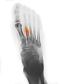Colorized x-ray showing a healing metatarsal fracture in a 44 year old woman