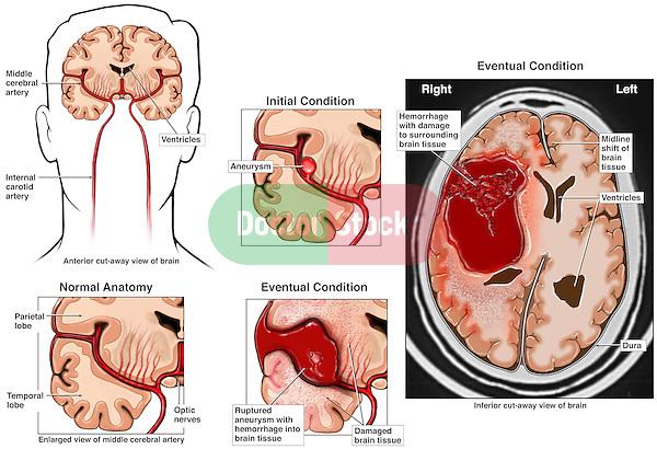 Aneurisma cerebral viagra