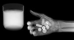 X-ray image of hand, pills, water (white on black) by Jim Wehtje, specialist in x-ray art and design images.