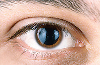 HUMAN EYE<br /> (1 of 2)<br /> Dilated pupil<br /> In low light the pupil dilates.