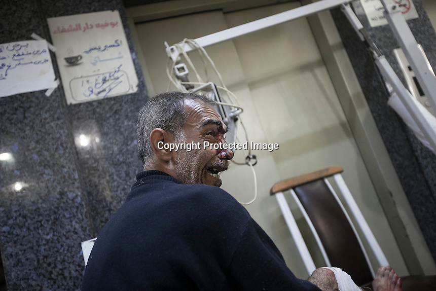 In this Wednesday, Oct. 31, 2012 photo, a Syrian civilian bawls terrorized as he is in shock after had arrived at one hospital injured by a warplane attack in the Karm Al-Aser neighborhood in Aleppo, the Syrian's largest city. Violent clashes reignited along the city's front line while warplanes attacked the rebel controlled areas throughout the financial capital of the Muslim country. (AP Photo/Narciso Contreras).