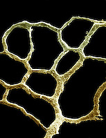 Slime Mold (Fuligo septica) plasmodium. Slime molds were formerly classified as Fungi but are presently considered to be Protozoans. SEM X110 **On Page Credit Required**