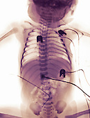 X-ray of a newborn girl with cardiac monitoring leads attached to her chest.