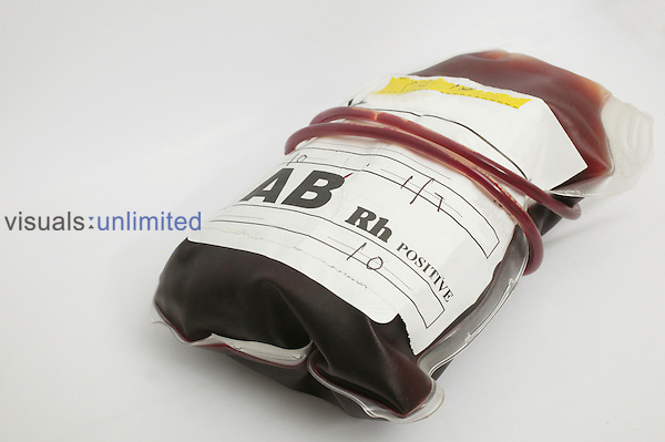 A blood bag containing group AB+ (positive) blood...Blood group AB contains both A an B antigens and has no Antibodies present, with a presence of presence the RhD antigen of the Rhesus blood group system. Royalty Free
