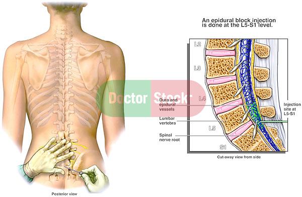 cervical interlaminar epidural steroid injection cpt