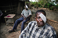 Two patients who have just received cataract surgery recuperate following the operations in the remote village of Pania.<br /> <br /> From his base in Mbuji Mayi Hungarian ophthalmologist Friar Richard Hardi and his team travelled deep into the Congolese rainforest, by 4x4 and canoe, to treat people in isolated communities most of whom have never seen an ophthalmologist. At a small village called Pania they established a temporary field hospital and over the next three days made hundreds of consultations. Although both conditions are preventable, many of the patients they saw had Glaucoma or River Blindness (onchocerciasis) that had permanently damaged their eyesight. However, patients with cataracts, a clouding of the eye's lens, who were suitable for treatment were booked for an operation. For two days the team carried out the ten minute procedure on one patient after another. The surgery involves making a 2.2mm incision into the remove the damaged lens that is then replaced by an artificial one. Doctor Hardi is one of the few people willing to make such a journey but is inspired to do so by his faith and, as he says: 'Here I feel that I can really make a difference in people's lives'. /Felix Features