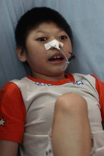 A victim of dioxin exposure lies on a bed in the Agent Orange children's ward of Tu Du Hospital in Ho Chi Minh City, Vietnam.  About 500 of the 60,000 children delivered each year at the maternity hospital, Vietnam's largest, are born with deformities, some because of Agent Orange, according to doctors. May 1, 2013.