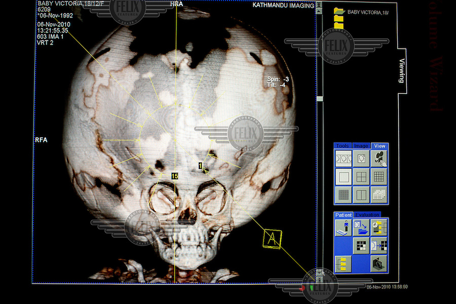 A CT scan of Victoria's head taken at the Annapurna Neurological Institute in Kathmandu. Since birth the growing amount of water inside her skull has been putting the cranium under pressure from within. It has expanded and is now larger than the head of a grown man. The bone structure has not grown at the same speed. As a result, the top of her head is only covered by skin. 19 month old Victoria (formerly named Ghane) was born with hydrocephalus and was left abandoned. Cecilie Hansen was so moved by the story of Ghane she read in a Danish newspaper that she decided to fly to Kathmandu to try to assist her and show her the love of another human being; Cecilie eventually became her legal guardian. Victoria died on November 19 2010 from heart failure.