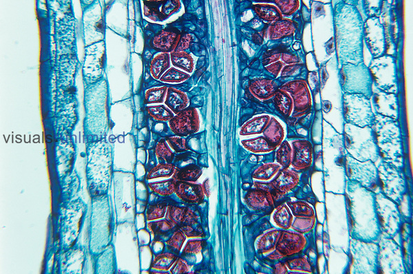 Section of a Hornwort (Anthoceros) columella and spores. LM X60.