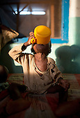 Malnourished child at MSF hospital in Central African Republic