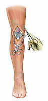 Biomedical illustration of knee surgery showing repair of the patellar tendon and retinaculum tears and Krackow stitches by a surgeon.