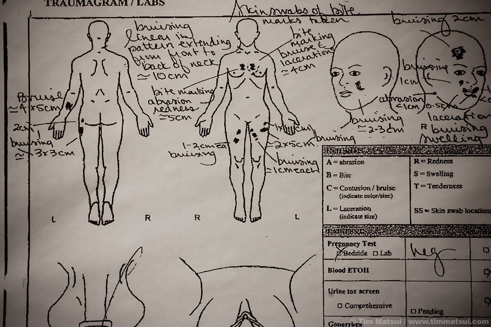The traumagram made by the sexual assault nurse examiner detailing Abbie's injuries when she reported her rape.