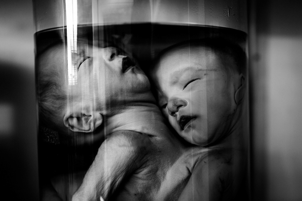 Siamese born babies rest in a specimen jar in a room full of similar jars at Peace Village. They were kept for scientific study and now remain as proof of the atrocities too many babies in Vietnam in have bore the last 40 years.