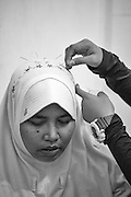 A distressed patient is calmed by the use of acupuncture after returning for further treatment at the Abu Albani Centre (for mental health) in Bekasi, Jakarta, Indonesia, 2016 - Photograph by David Dare Parker