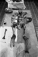 A skeleton in the morgue in Orahovac/Rahovec, Kosovo, being examined for a war crimes case, shows signs of torture and murder: a bullet through the head, a shattered leg, broken ribs, and shrapnel from a hand-grenade.